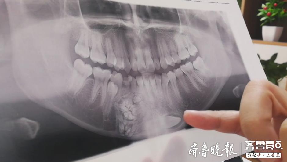 """惊!医生从潍坊一14岁女孩嘴里,刮除了上百颗""""牙齿"""""""